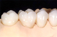 Chicago Porcelain Crowns, Bridges, Onlays, Inlays